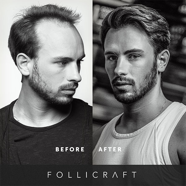 Before and after follicraft hair weave